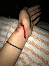 This is from falling off a shitty pole in a nightclub near my job. Tip: never wear jeans and tennis shoes and try to perform pole tricks you're used to doing almost naked. Fucking gnarly.